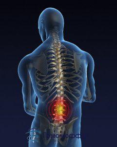межпозвоночная грыжа лечение без операции