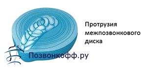 протрузия межпозвоночного диска l5 s1