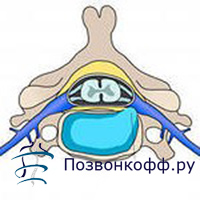 протрузии шейного отдела лечение