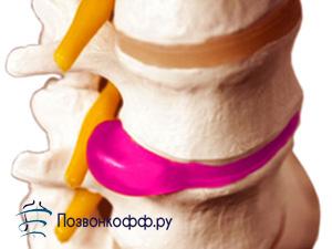 межпозвоночная грыжа крестцового отдела