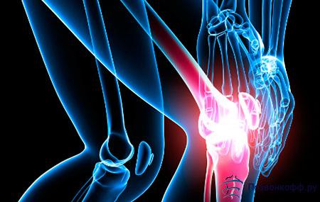 Лечение суставов народными стредствами