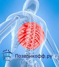 грудной радикулит симптомы