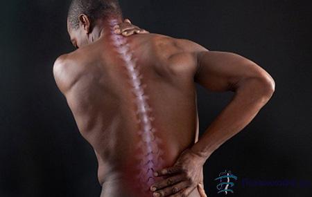 болит спина в области позвоночника