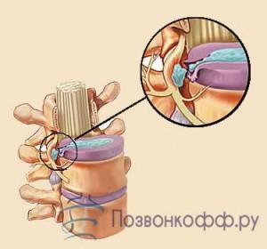 грыжа поясничного отдела позвоночника симптомы