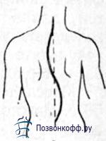 s-образный сколиоз