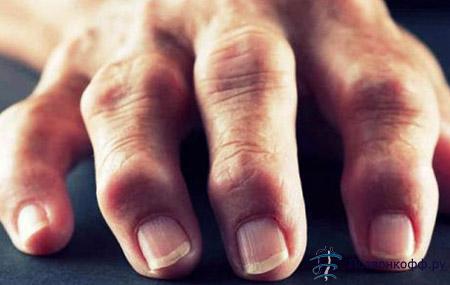Причины артрита пальцев рук