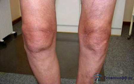Последствия артроза коленного сустава
