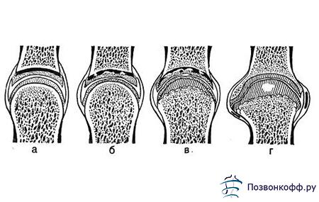 Развитие деформирующего артроза коленного сустава