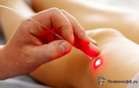 Лазеротерапия при остеоартрозе