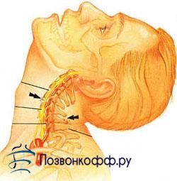 головокружение при шейном остеохондрозе симптомы