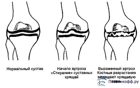Стадии артроза суставов