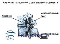 спондилез шейного отдела лечение