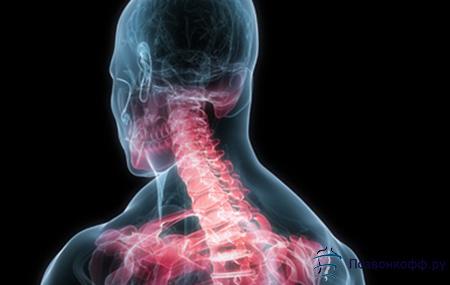 боль в шее справа лечение