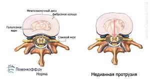 фораминальная грыжа межпозвоночного диска