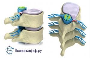 межпозвоночная грыжа шейного отдела лечение