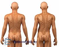 спондилез шейный лечение