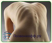 сколиоз грудного отдела позвоночника симптомы