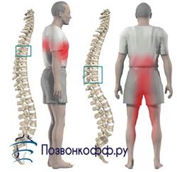 лекарство от остеохондроза грудного
