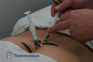 снятие боли при грыже позвоночника