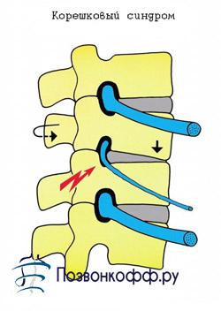 симптомы спинной грыжи