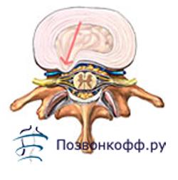 циркулярная протрузия диска l5 s1