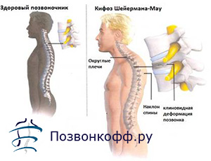 грудной кифоз усилен
