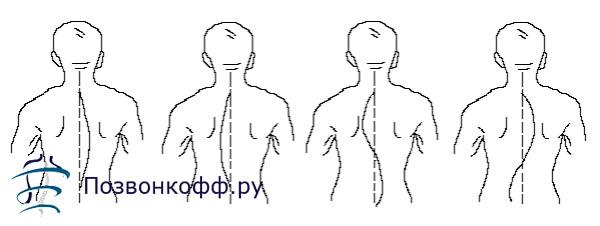 искривление грудного отдела позвоночника
