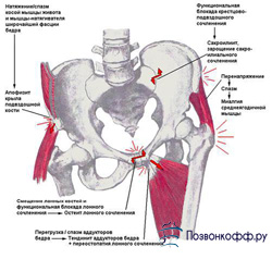 остеохондроз поясничного отдела позвоночника симптомы