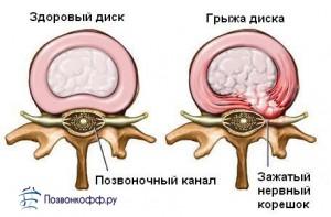 лечение шейной грыжи без операции