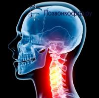 грыжа шейных позвонков лечение