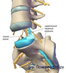 грыжа шейных позвонков симптомы